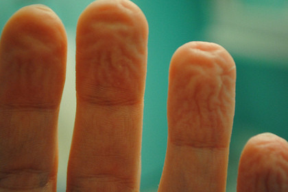 dedos enrugados.jpg
